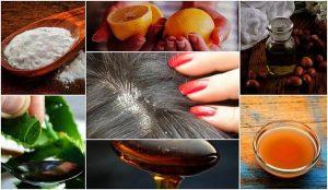 ۹ روش درمان خانگی برای رفع شوره سر به صورت دائمی